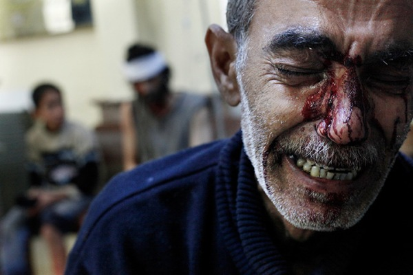 A father cries while his children are being treated in a local hospital